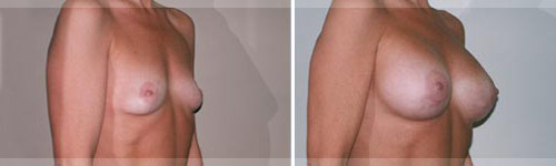 Breast Augmentation Rome GA
